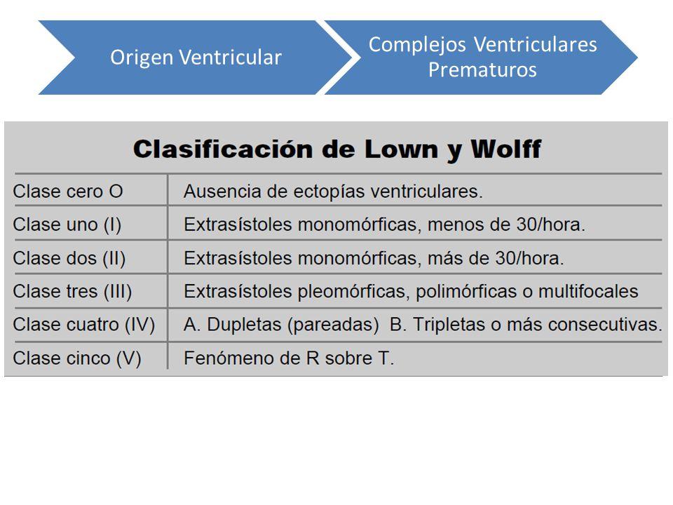 Origen Ventricular Complejos Ventriculares Prematuros