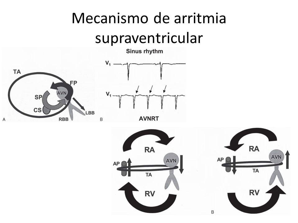 Arritmias Supraventriculares Arritmias no sostenidas: – Complejos Auriculares Prematuros Arritmias sostenidas: – Arritmias de la unión AV (paroxísticas) – Arritmias auriculares