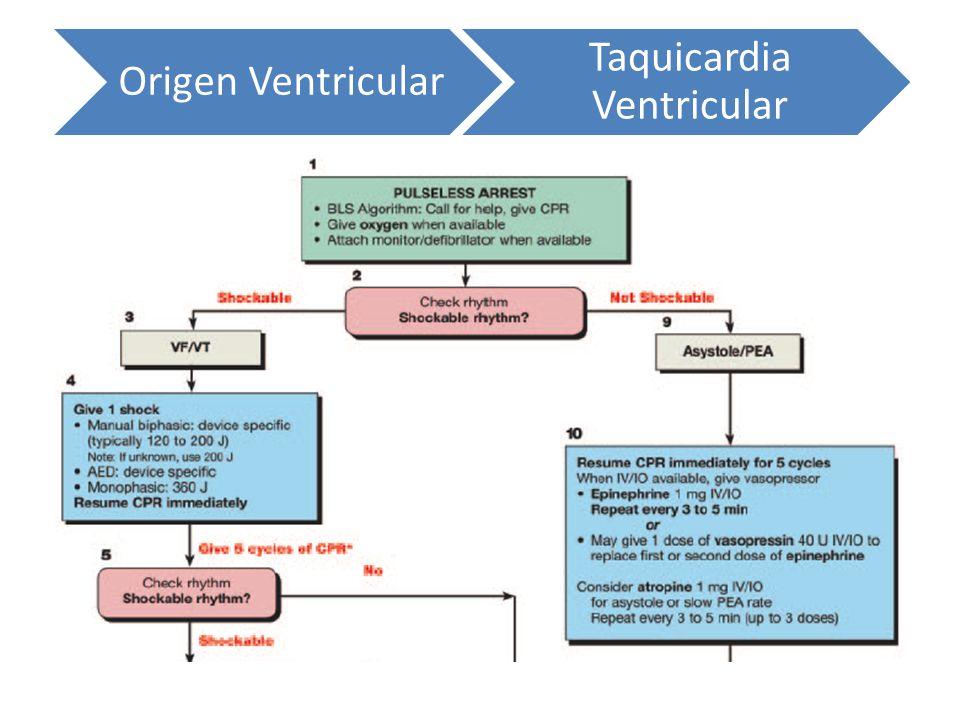 Origen Ventricular Taquicardia Ventricular