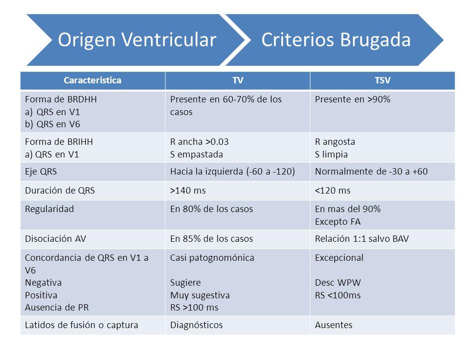 CaracteristicaTVTSV Forma de BRDHH a)QRS en V1 b)QRS en V6 Presente en 60-70% de los casos Presente en >90% Forma de BRIHH a) QRS en V1 R ancha >0.03