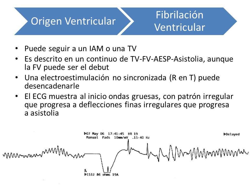 Puede seguir a un IAM o una TV Es descrito en un continuo de TV-FV-AESP-Asistolia, aunque la FV puede ser el debut Una electroestimulación no sincroni