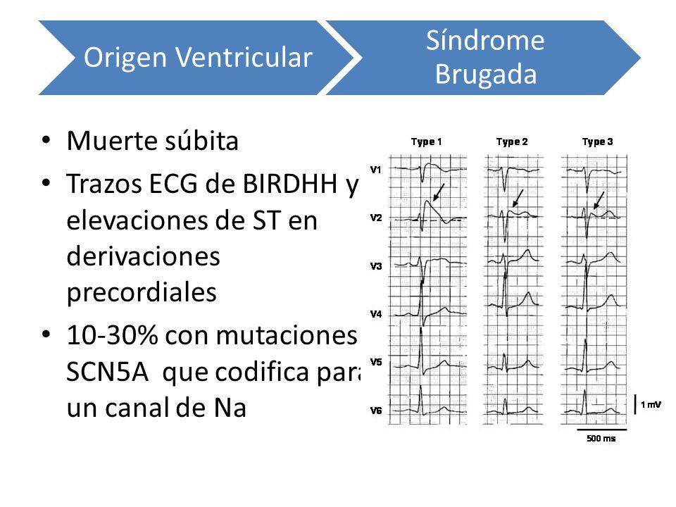 Muerte súbita Trazos ECG de BIRDHH y elevaciones de ST en derivaciones precordiales 10-30% con mutaciones SCN5A que codifica para un canal de Na Orige
