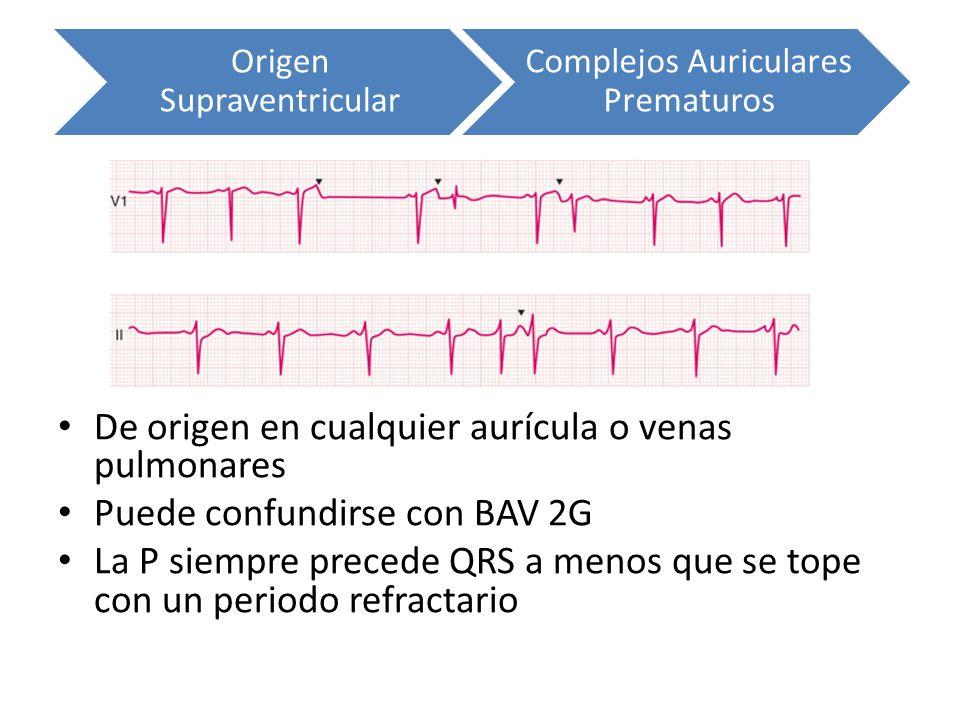 Origen Supraventricular Complejos Auriculares Prematuros De origen en cualquier aurícula o venas pulmonares Puede confundirse con BAV 2G La P siempre
