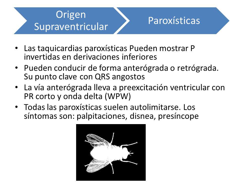 Origen Supraventricular Paroxísticas Las taquicardias paroxísticas Pueden mostrar P invertidas en derivaciones inferiores Pueden conducir de forma ant