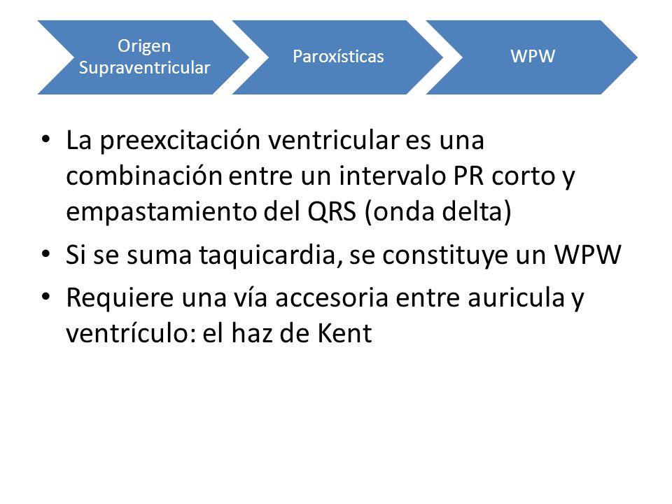La preexcitación ventricular es una combinación entre un intervalo PR corto y empastamiento del QRS (onda delta) Si se suma taquicardia, se constituye