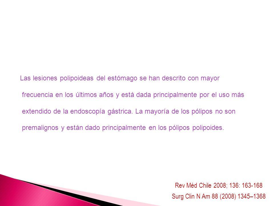 Rev Méd Chile 2008; 136: 163-168 Surg Clin N Am 88 (2008) 1345–1368 Las lesiones polipoideas del estómago se han descrito con mayor frecuencia en los
