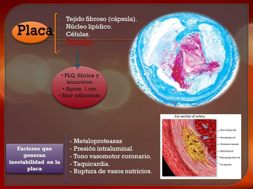 - Tejido fibroso (cápsula). - Núcleo lipídico. - Células. - Trombo.. PLQ, fibrina y leucocitos. Aprox. 1 cm. Muy adherente. - Metaloproteasas - Presió