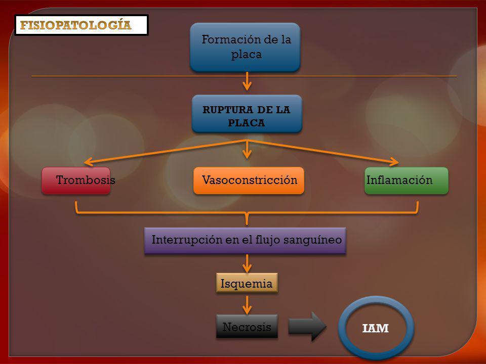 Formación de la placa RUPTURA DE LA PLACA Trombosis Vasoconstricción Inflamación Interrupción en el flujo sanguíneo Isquemia Necrosis