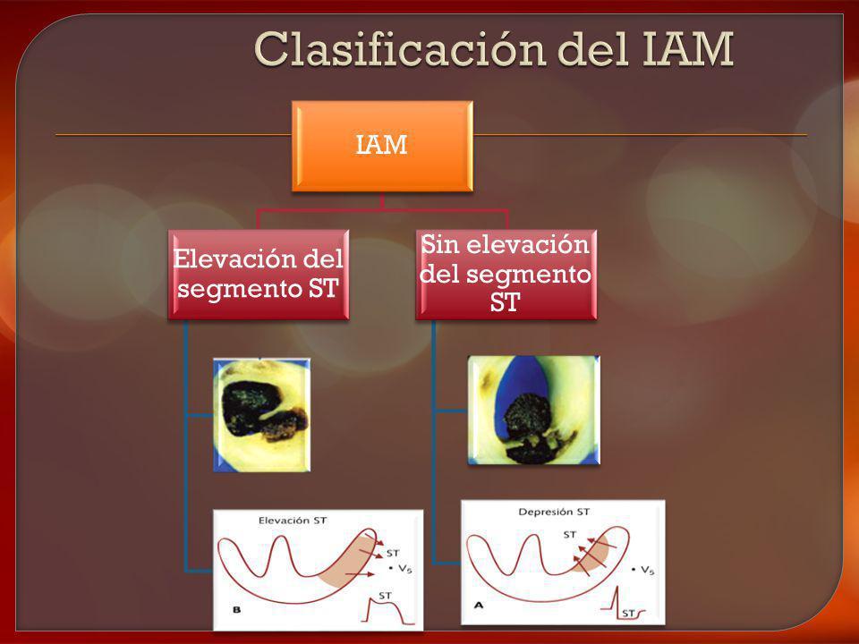 IAM Elevación del segmento ST Sin elevación del segmento ST