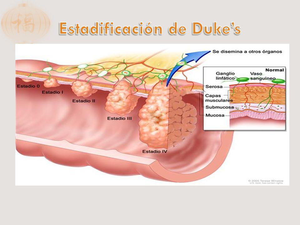 A: limitada a mucosa B1: Afecta la muscular de la mucosa, submucosa o mucosa externa, pero no la subserosa B2: Subserosa, serosa, u órganos adyacentes C1:Etapa B1+ metástasis a ganglios linfáticos C2: Etapa B2+ metástasis a ganglios linfáticos