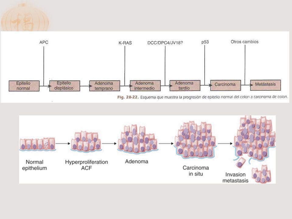 La mayor parte de los carcinomas colorrectales evoluciona de los pólipos.