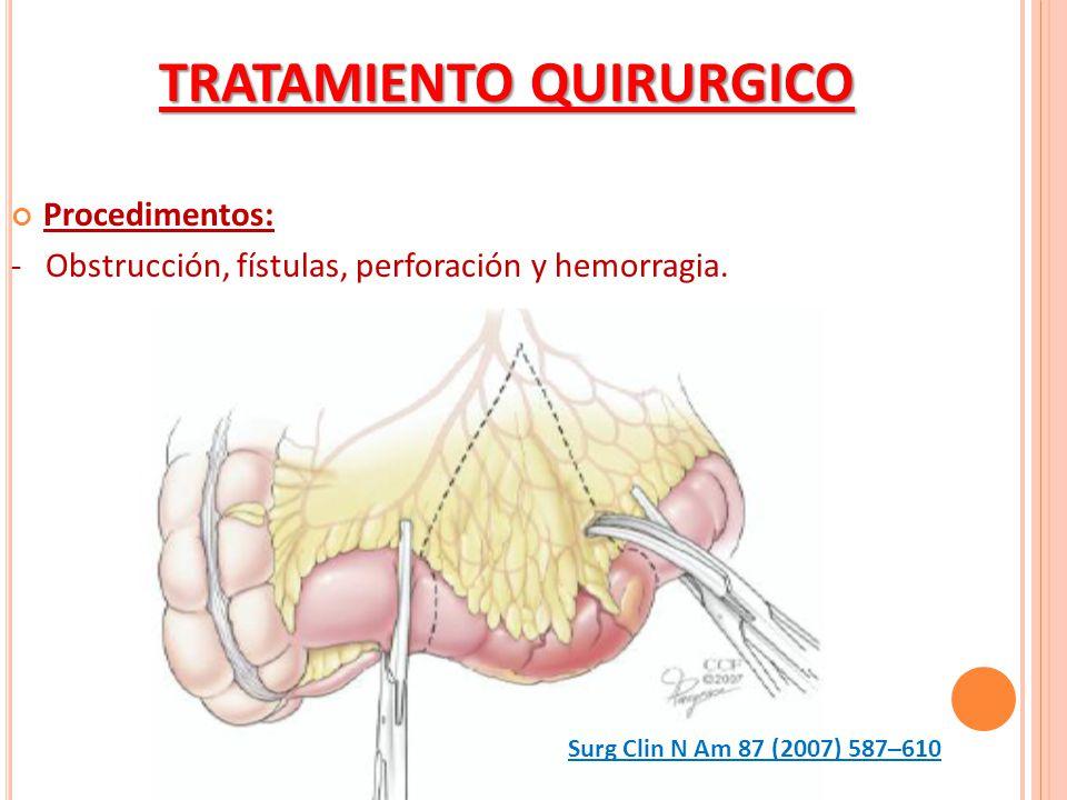 Procedimentos: - Obstrucción, fístulas, perforación y hemorragia. TRATAMIENTO QUIRURGICO Surg Clin N Am 87 (2007) 587–610