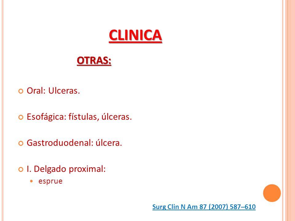 CLINICA OTRAS: Oral: Ulceras. Esofágica: fístulas, úlceras. Gastroduodenal: úlcera. I. Delgado proximal: esprue Surg Clin N Am 87 (2007) 587–610
