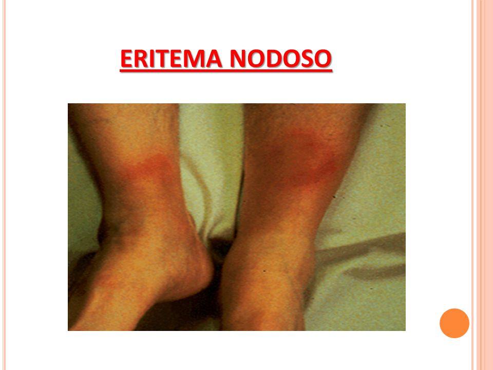 ERITEMA NODOSO