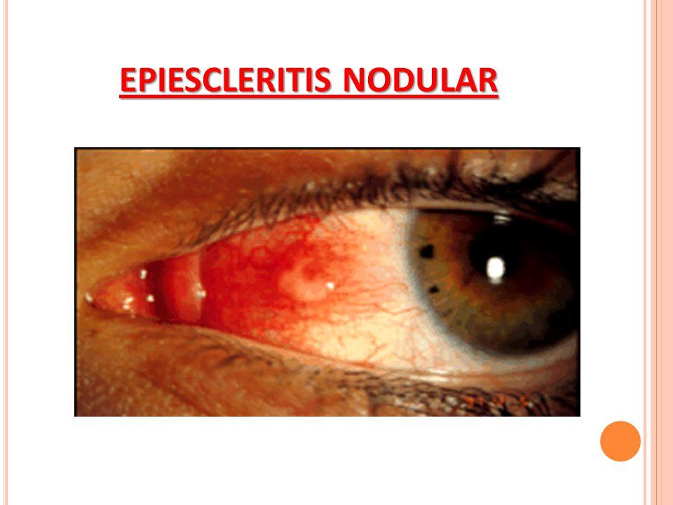 EPIESCLERITIS NODULAR