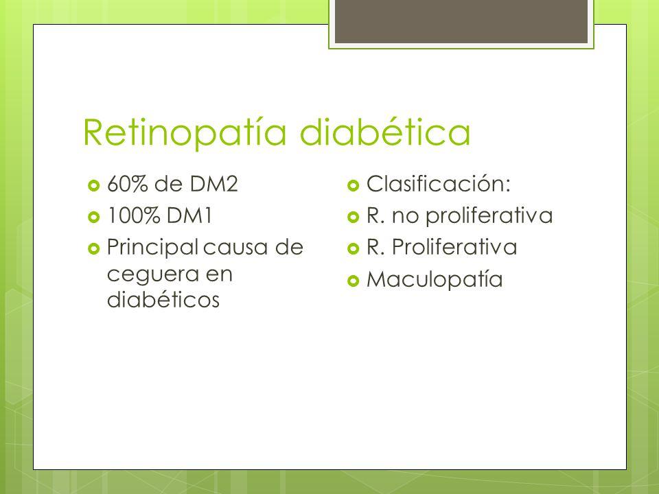 Retinopatía diabética 60% de DM2 100% DM1 Principal causa de ceguera en diabéticos Clasificación: R. no proliferativa R. Proliferativa Maculopatía