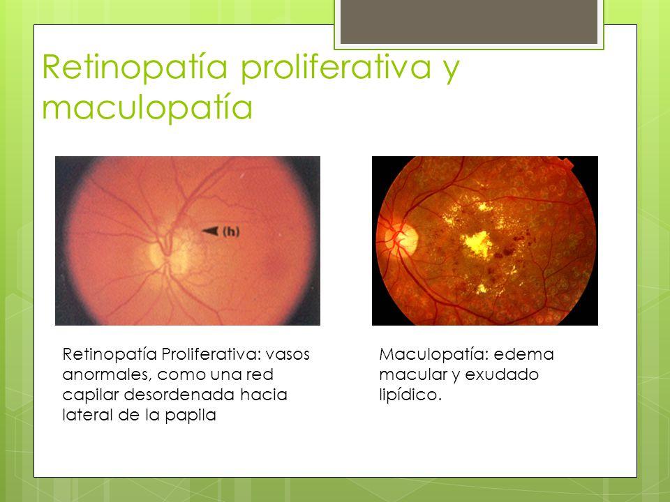 Retinopatía proliferativa y maculopatía Retinopatía Proliferativa: vasos anormales, como una red capilar desordenada hacia lateral de la papila Maculo