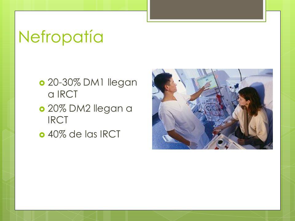 Nefropatía 20-30% DM1 llegan a IRCT 20% DM2 llegan a IRCT 40% de las IRCT