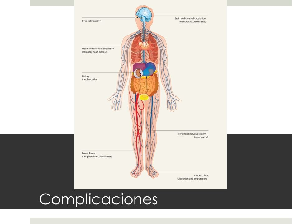 Complicaciones