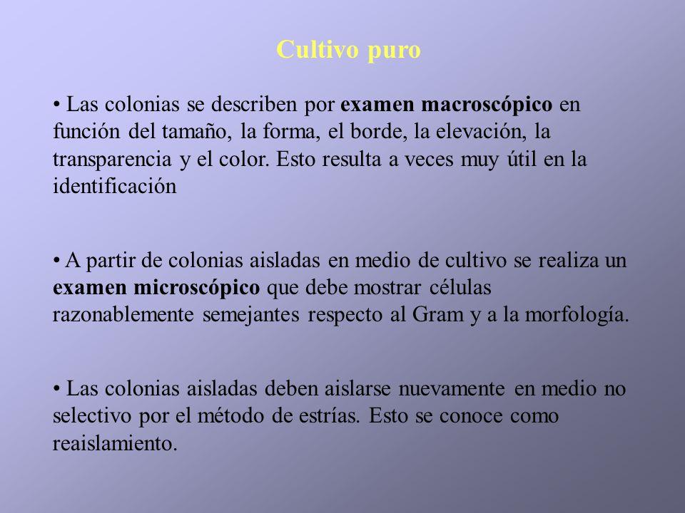 Las colonias se describen por examen macroscópico en función del tamaño, la forma, el borde, la elevación, la transparencia y el color. Esto resulta a