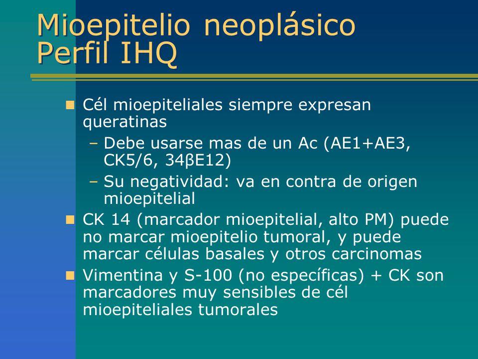 Mioepitelio neoplásico Perfil IHQ Cél mioepiteliales siempre expresan queratinas –Debe usarse mas de un Ac (AE1+AE3, CK5/6, 34βE12) –Su negatividad: v