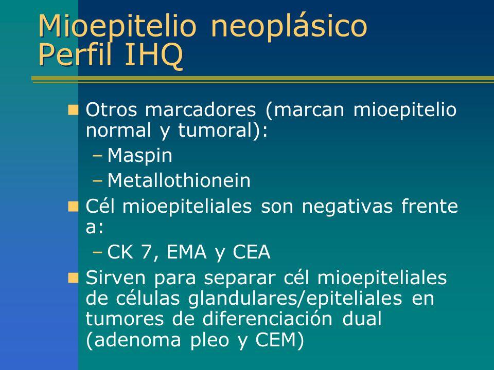 Mioepitelio neoplásico Perfil IHQ Otros marcadores (marcan mioepitelio normal y tumoral): –Maspin –Metallothionein Cél mioepiteliales son negativas fr