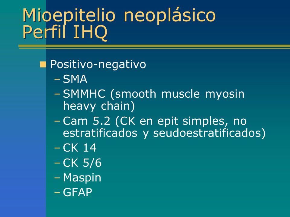 Mioepitelio neoplásico Perfil IHQ Positivo-negativo –SMA –SMMHC (smooth muscle myosin heavy chain) –Cam 5.2 (CK en epit simples, no estratificados y s