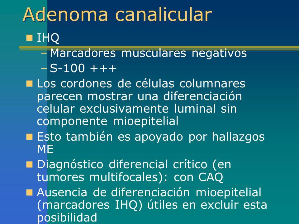 Adenoma canalicular IHQ –Marcadores musculares negativos –S-100 +++ Los cordones de células columnares parecen mostrar una diferenciación celular excl