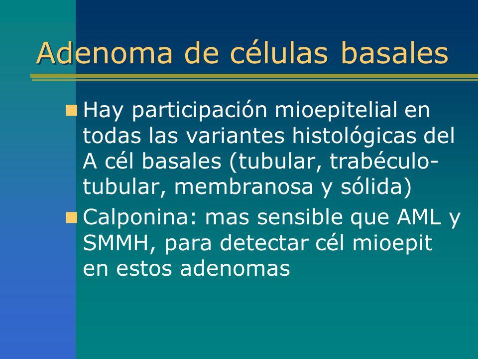 Adenoma de células basales Hay participación mioepitelial en todas las variantes histológicas del A cél basales (tubular, trabéculo- tubular, membrano