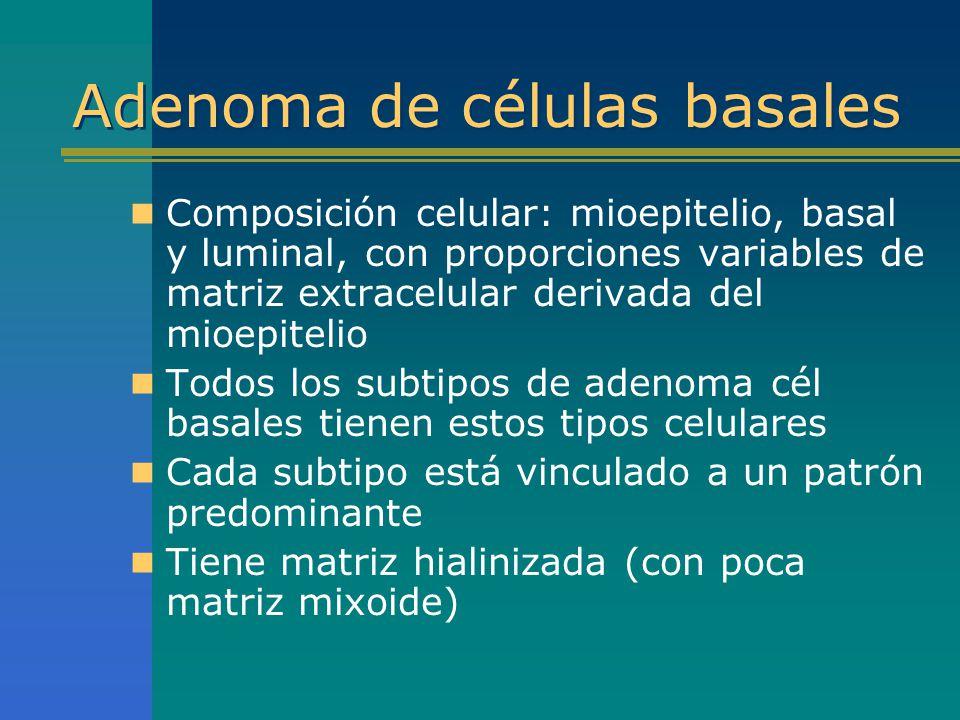 Adenoma de células basales Composición celular: mioepitelio, basal y luminal, con proporciones variables de matriz extracelular derivada del mioepitel