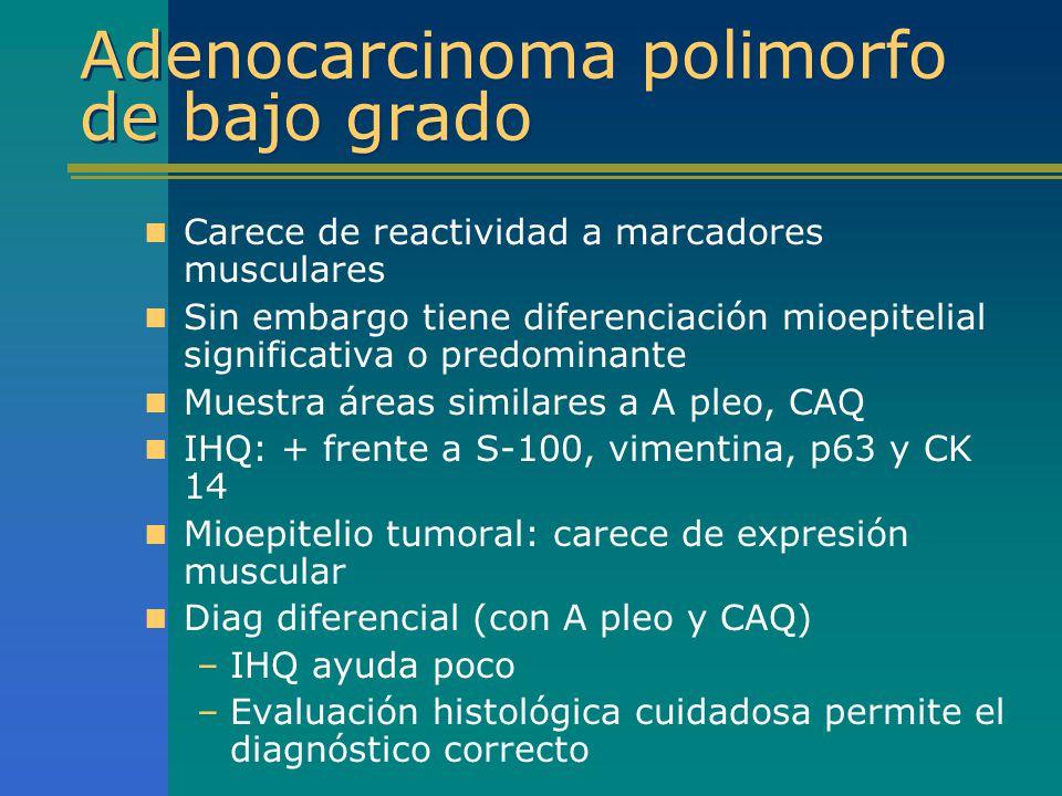Adenocarcinoma polimorfo de bajo grado Carece de reactividad a marcadores musculares Sin embargo tiene diferenciación mioepitelial significativa o pre