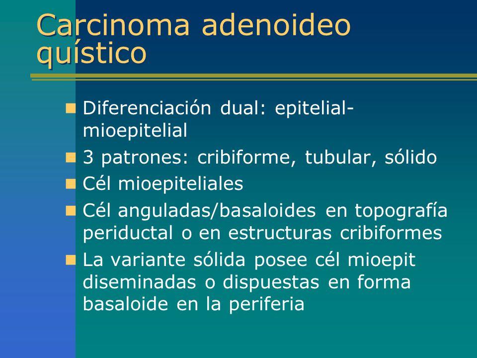Carcinoma adenoideo quístico Diferenciación dual: epitelial- mioepitelial 3 patrones: cribiforme, tubular, sólido Cél mioepiteliales Cél anguladas/bas