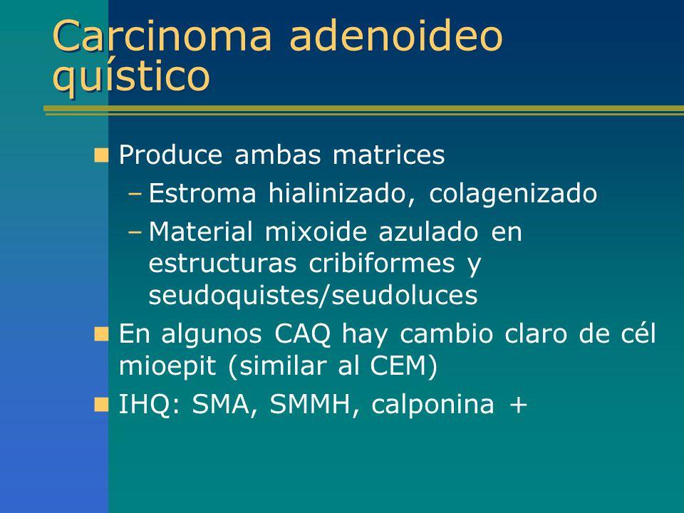 Carcinoma adenoideo quístico Produce ambas matrices –Estroma hialinizado, colagenizado –Material mixoide azulado en estructuras cribiformes y seudoqui