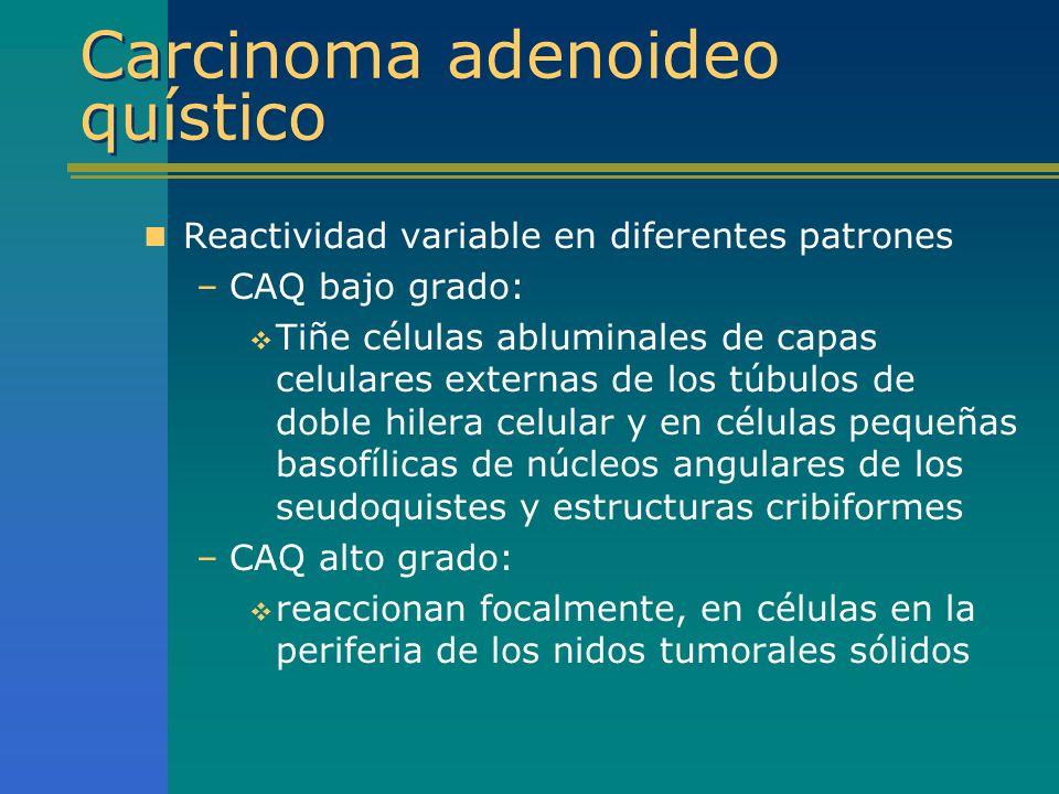 Carcinoma adenoideo quístico Reactividad variable en diferentes patrones –CAQ bajo grado: Tiñe células abluminales de capas celulares externas de los