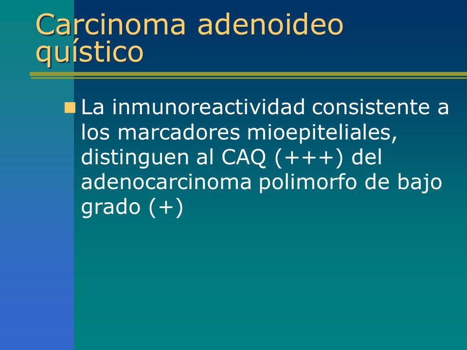 Carcinoma adenoideo quístico La inmunoreactividad consistente a los marcadores mioepiteliales, distinguen al CAQ (+++) del adenocarcinoma polimorfo de