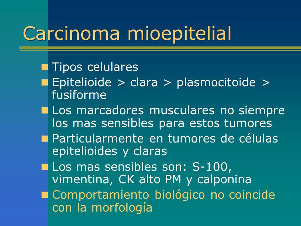 Carcinoma mioepitelial Tipos celulares Epitelioide > clara > plasmocitoide > fusiforme Los marcadores musculares no siempre los mas sensibles para est