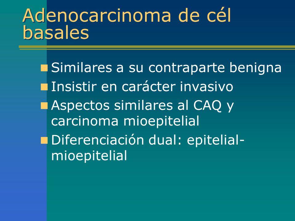 Adenocarcinoma de cél basales Similares a su contraparte benigna Insistir en carácter invasivo Aspectos similares al CAQ y carcinoma mioepitelial Dife