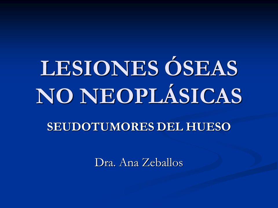 LESIONES ÓSEAS NO NEOPLÁSICAS SEUDOTUMORES DEL HUESO Dra. Ana Zeballos