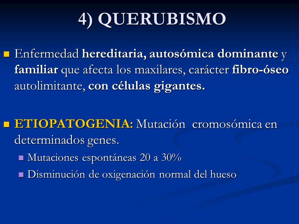 4) QUERUBISMO Enfermedad hereditaria, autosómica dominante y familiar que afecta los maxilares, carácter fibro-óseo autolimitante, con células gigante