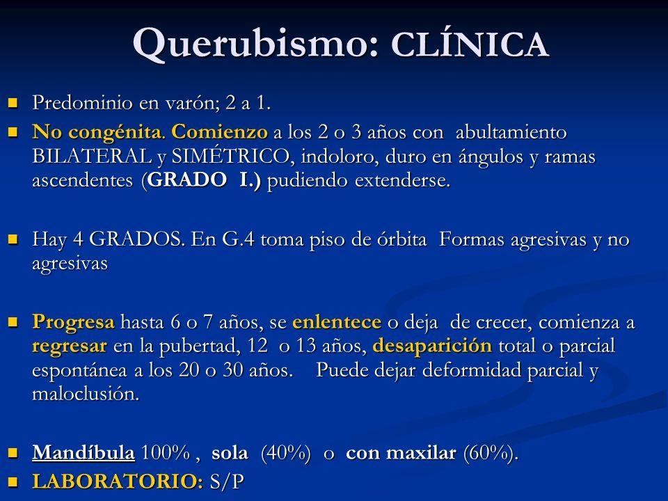 Querubismo: CLÍNICA Querubismo: CLÍNICA Predominio en varón; 2 a 1. Predominio en varón; 2 a 1. No congénita. Comienzo a los 2 o 3 años con abultamien