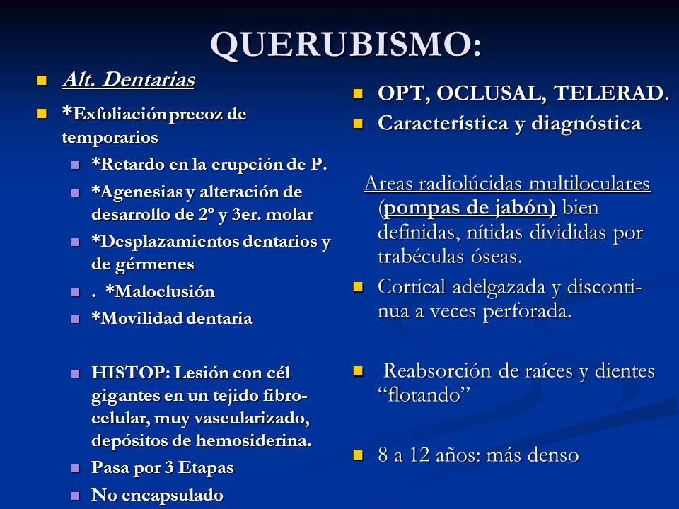 QUERUBISMO: QUERUBISMO: OPT, OCLUSAL, TELERAD. Característica y diagnóstica Areas radiolúcidas multiloculares (pompas de jabón) bien definidas, nítida
