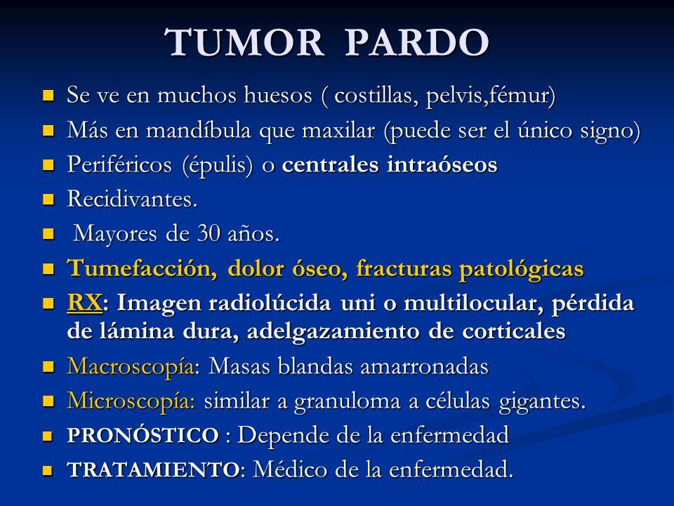 TUMOR PARDO Se ve en muchos huesos ( costillas, pelvis,fémur) Se ve en muchos huesos ( costillas, pelvis,fémur) Más en mandíbula que maxilar (puede se