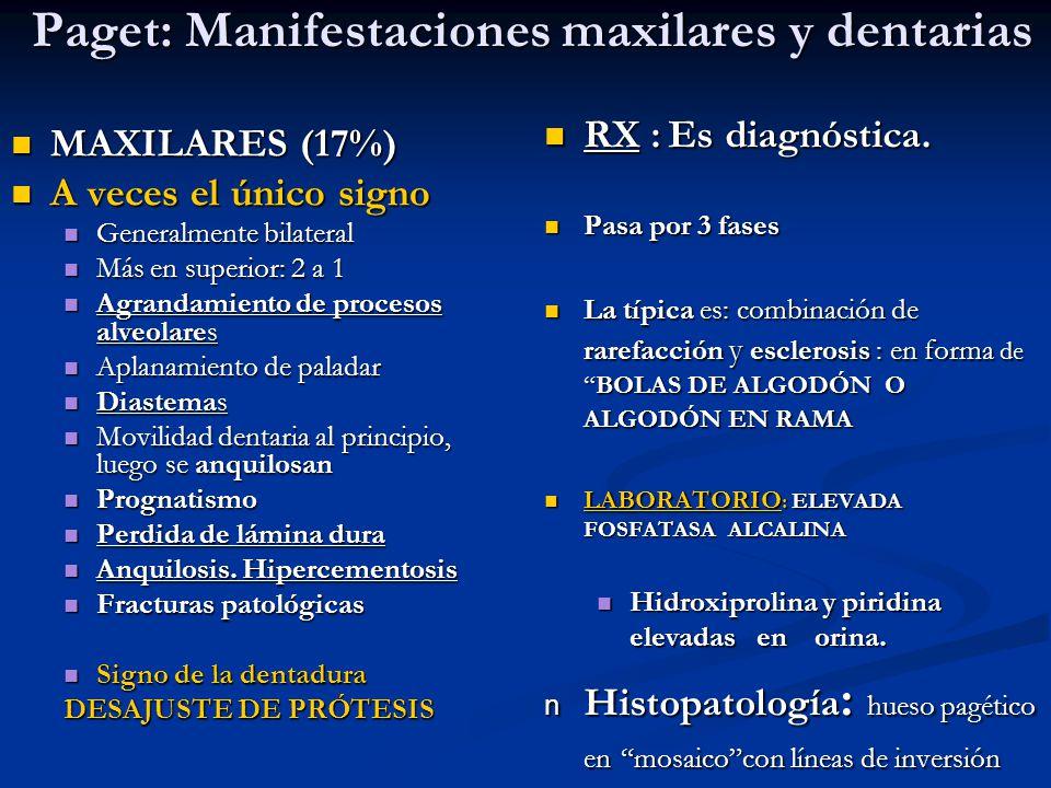 Paget: Manifestaciones maxilares y dentarias Paget: Manifestaciones maxilares y dentarias MAXILARES (17%) MAXILARES (17%) A veces el único signo A vec