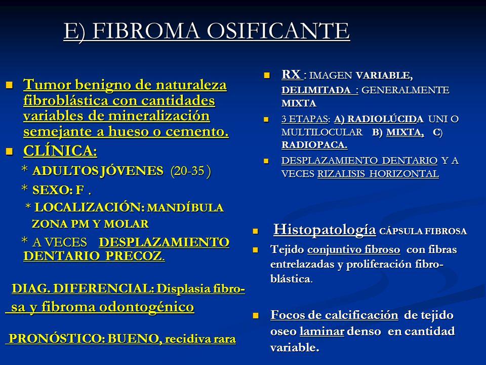 E) FIBROMA OSIFICANTE RX : IMAGEN VARIABLE, DELIMITADA : GENERALMENTE MIXTA RX : IMAGEN VARIABLE, DELIMITADA : GENERALMENTE MIXTA 3 ETAPAS: A) RADIOLÚ