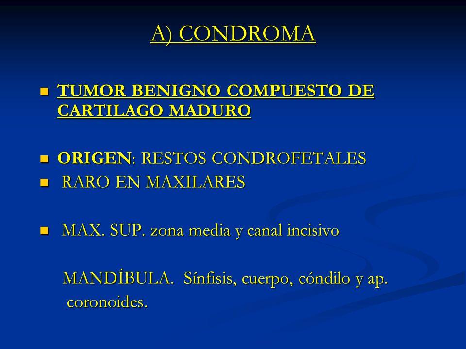 A) CONDROMA TUMOR BENIGNO COMPUESTO DE CARTILAGO MADURO TUMOR BENIGNO COMPUESTO DE CARTILAGO MADURO ORIGEN: RESTOS CONDROFETALES ORIGEN: RESTOS CONDRO