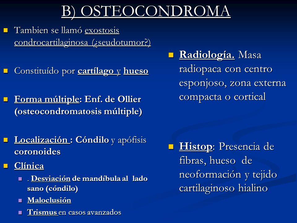 B) OSTEOCONDROMA Tambien se llamó exostosis condrocartilaginosa (¿seudotumor?) Tambien se llamó exostosis condrocartilaginosa (¿seudotumor?) Constituí