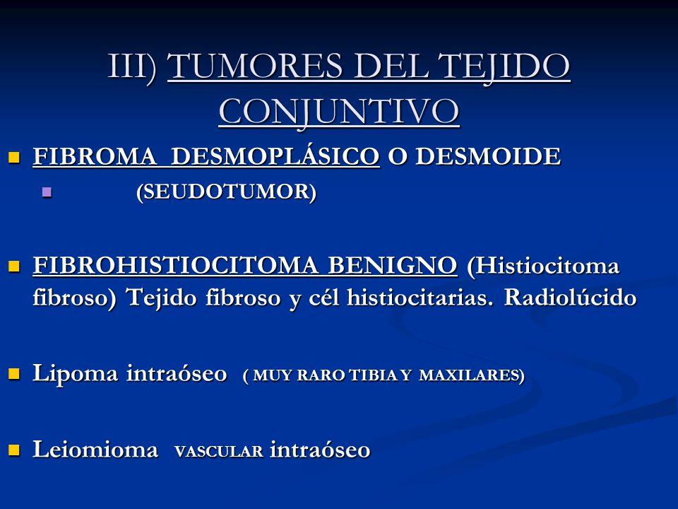 III) TUMORES DEL TEJIDO CONJUNTIVO FIBROMA DESMOPLÁSICO O DESMOIDE FIBROMA DESMOPLÁSICO O DESMOIDE (SEUDOTUMOR) (SEUDOTUMOR) FIBROHISTIOCITOMA BENIGNO