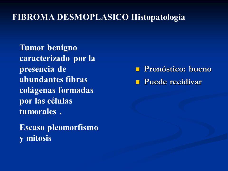 FIBROMA DESMOPLASICO Histopatología Tumor benigno caracterizado por la presencia de abundantes fibras colágenas formadas por las células tumorales. Es