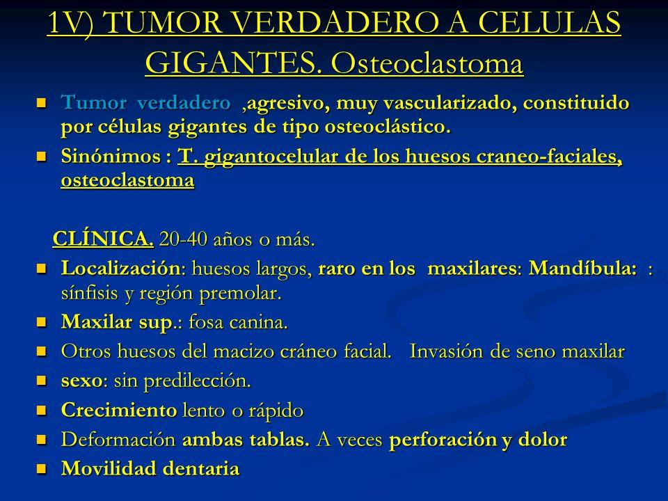 1V) TUMOR VERDADERO A CELULAS GIGANTES. Osteoclastoma Tumor verdadero,agresivo, muy vascularizado, constituido por células gigantes de tipo osteoclást