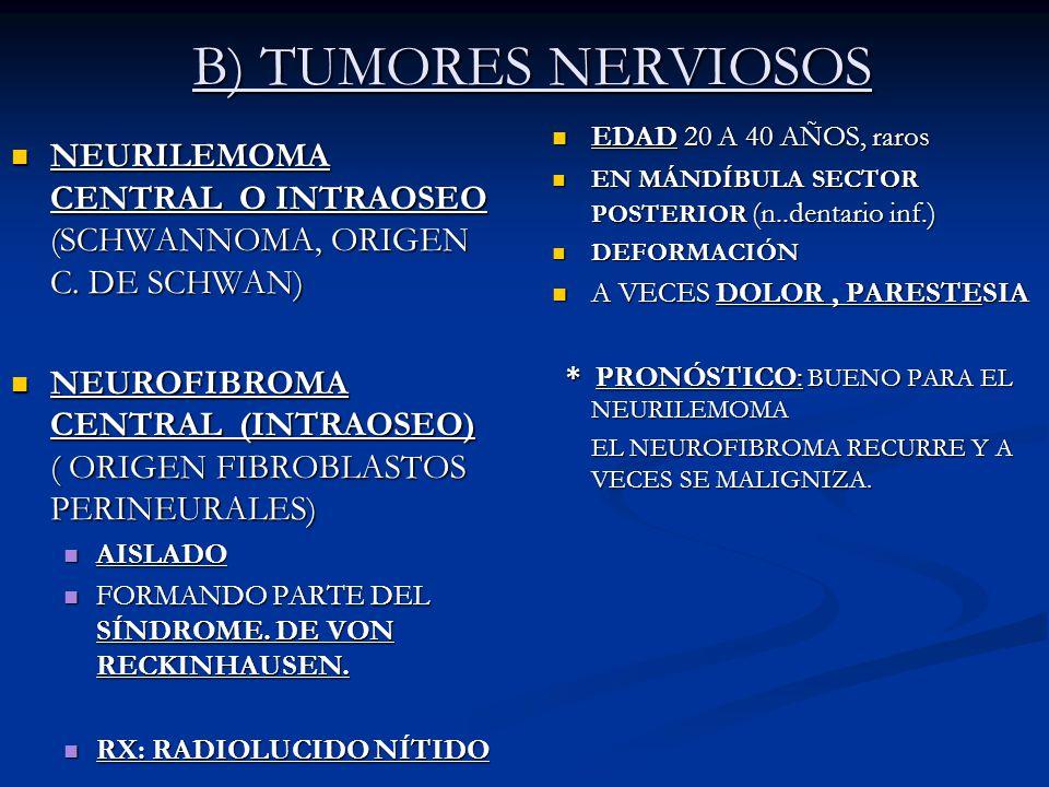 B) TUMORES NERVIOSOS NEURILEMOMA CENTRAL O INTRAOSEO (SCHWANNOMA, ORIGEN C. DE SCHWAN) NEURILEMOMA CENTRAL O INTRAOSEO (SCHWANNOMA, ORIGEN C. DE SCHWA